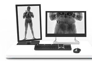 People X-ray Screening